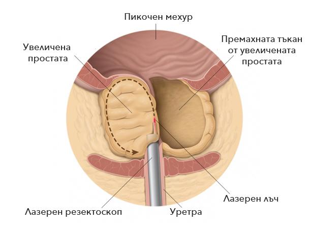 Проявления рака предстательной железы