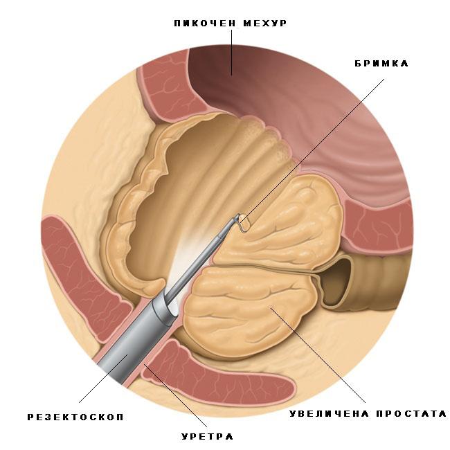 Гипертрофия предстательной железы препарат